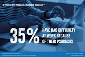 Of people with psoriasis considered 'moderate', 35% have had difficulty at work because of their psoriasis.